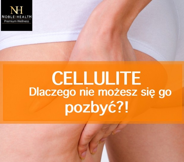 Cellulite noble health