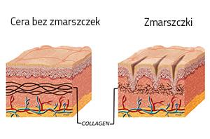 Zmarszczki a kolagen w skórze