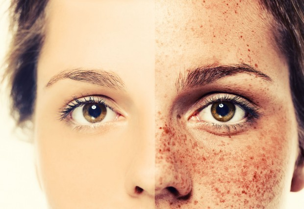 how to get rid of face discoloration