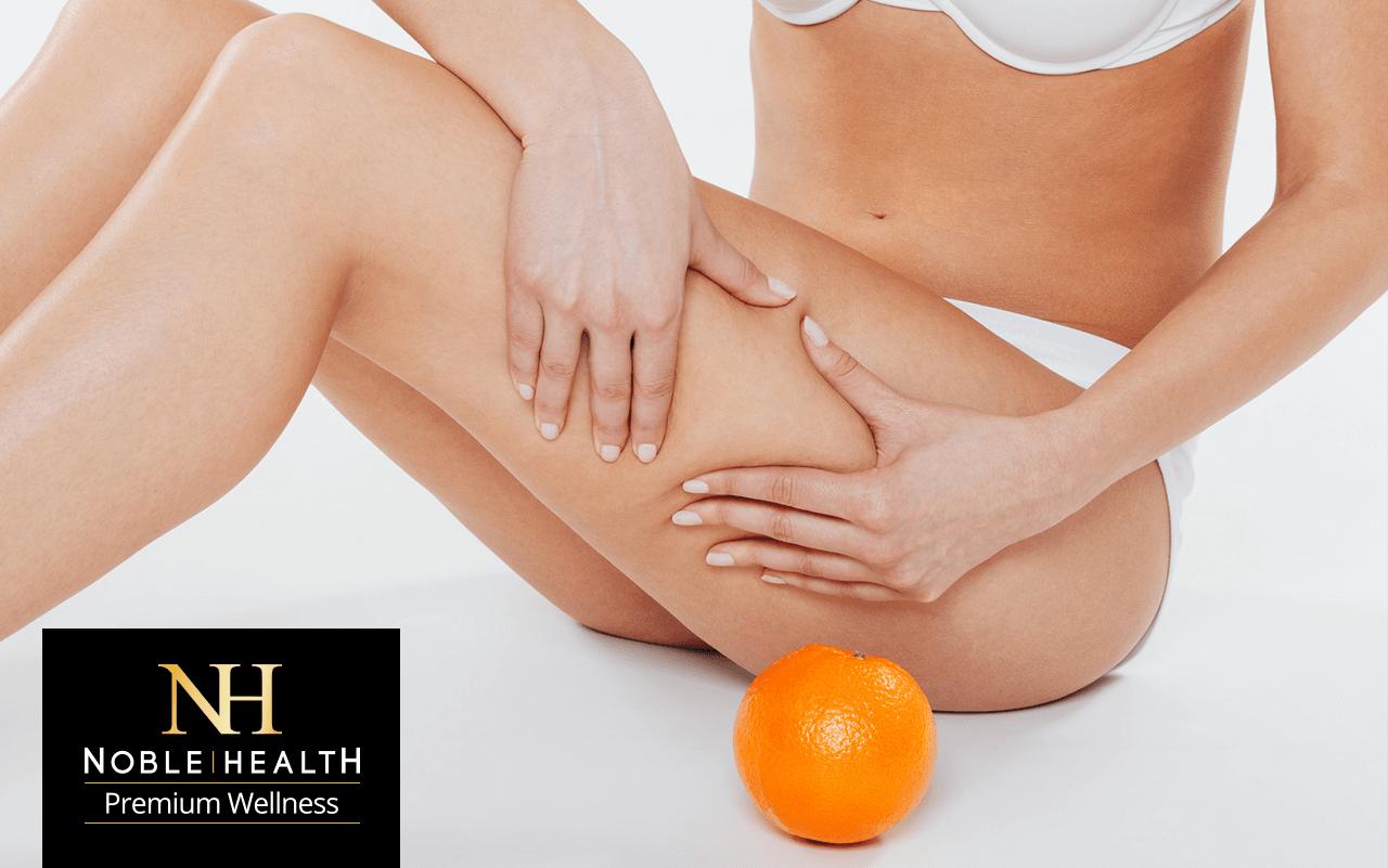 wpływ kolagenu na skórę cellulite
